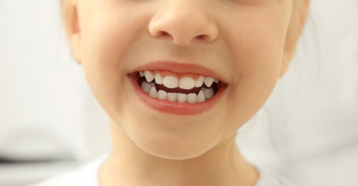 Cariile copiilor: de ce se tratează dacă tot sunt dinți de lapte și îi schimbă?
