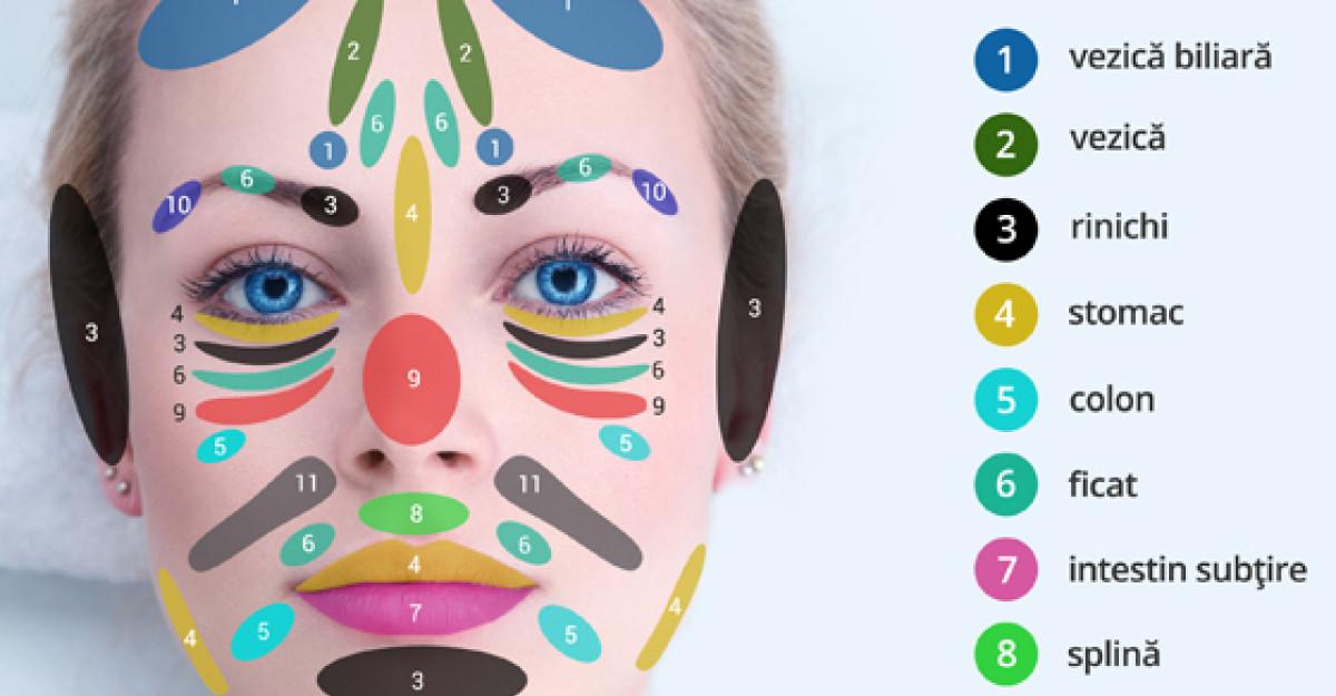 Tratament intern acnee