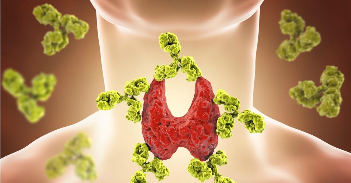 Tiroidita autoimuna, rezultatul unei functionari defectuoase a sistemului imunitar. Simptome, cauze, tratament