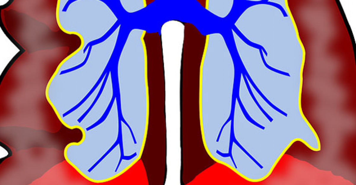 BPOC (bronhopneumopatie obstructiva cronica)