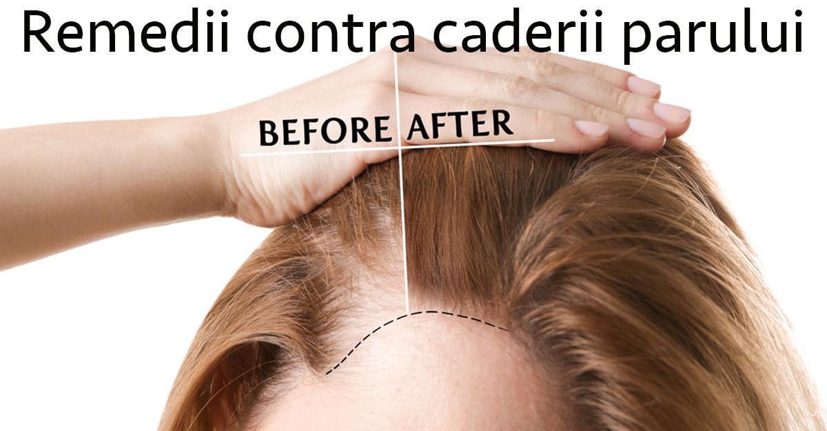 5 Remedii contra căderii părului