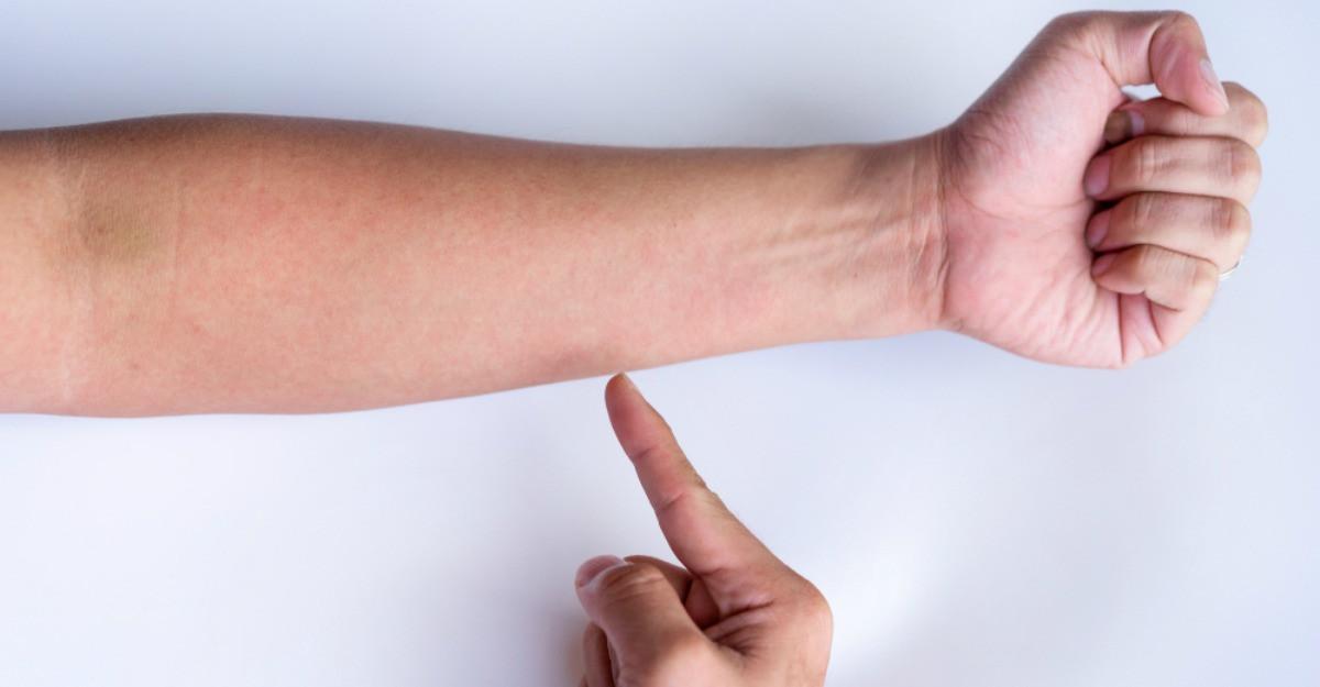 Vasculita, boala autoimuna care afecteaza vasele de sange. Simptome, cauze si tratament
