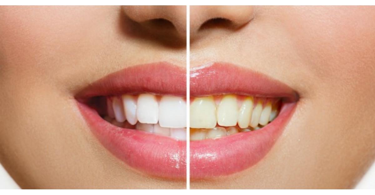 Amestecul minune care iti albeste dintii. Iata cat de usor se poate prepara acasa