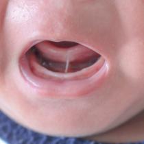 Frenul scurt sublingual (anchiloglosie) la bebeluși și copii - diagnostic, tratament
