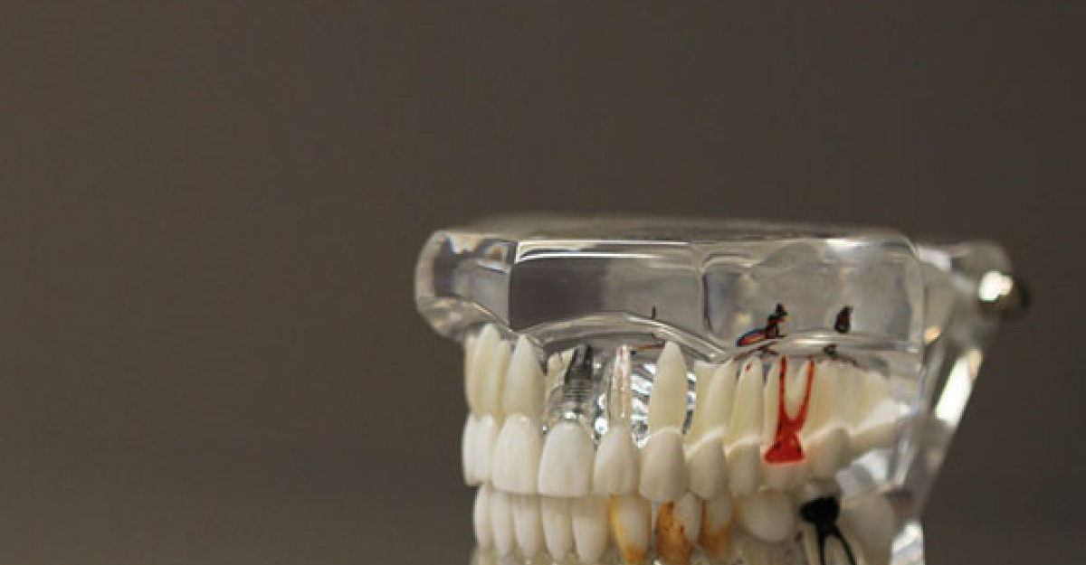Implantul dentar: 6 semne ca ceva este in neregula!