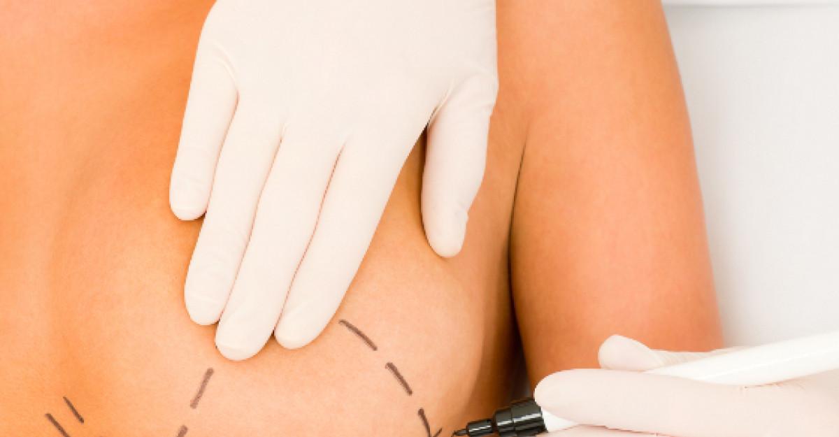Mitul implanturilor mamare: rotunde sau anatomice, afla care ti se potrivesc!