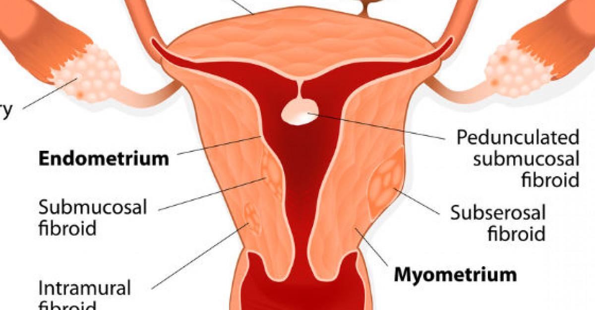 Fibromul uterin - ce ar trebui sa stie o femeie