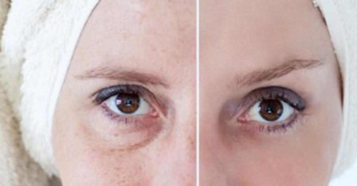 5 motive pentru care pielea pare imbatranita +5 solutii naturale