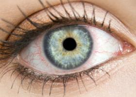 Hemoragia subconjunctivala sau ochii rosii