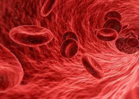 Alerta: 14 Semne si simptome ale anemiei