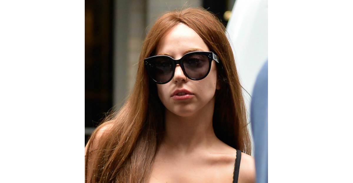 Lady Gaga, operatie de micsorare a nasului. Cum arata cantareata acum?
