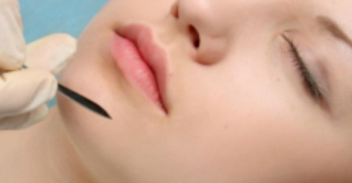 Mentoplastia - operatia de remodelare a barbiei