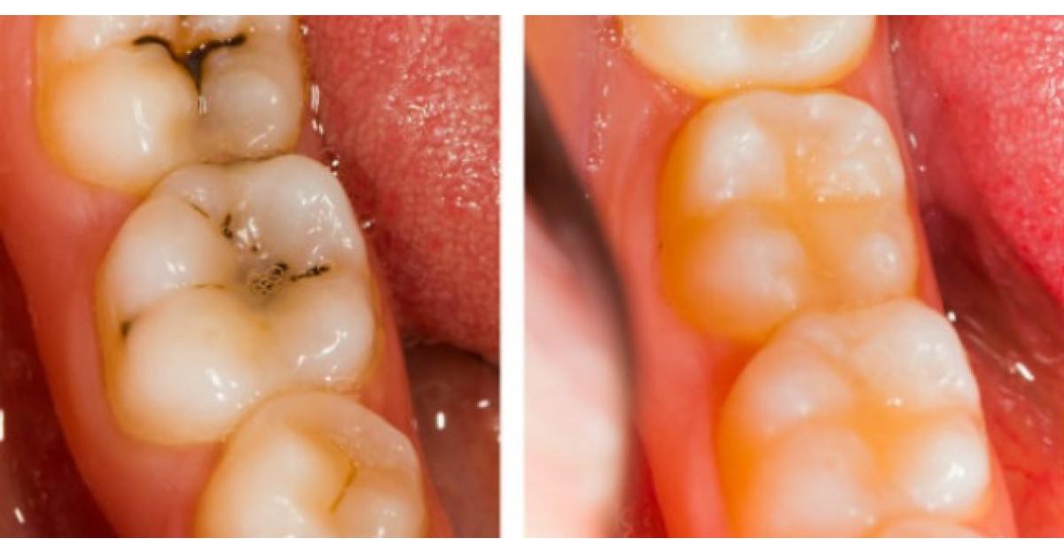 Trateaza cariile dentare cu UN SINGUR ingredient chiar la tine acasa