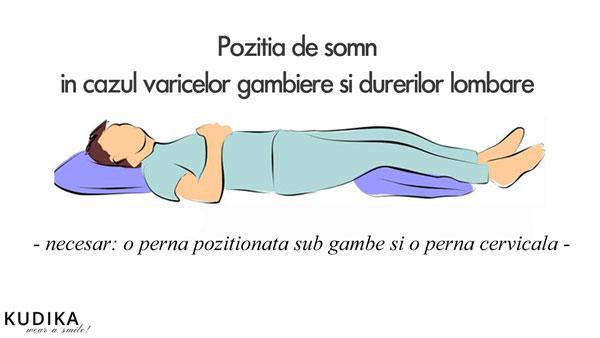 cum sa dormi daca ai dureri de spate si varice
