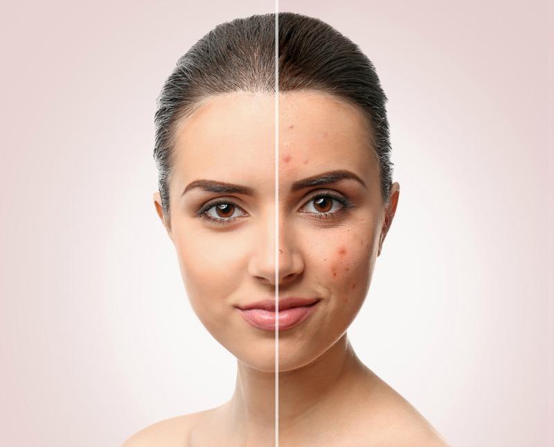 dermatocosmetice