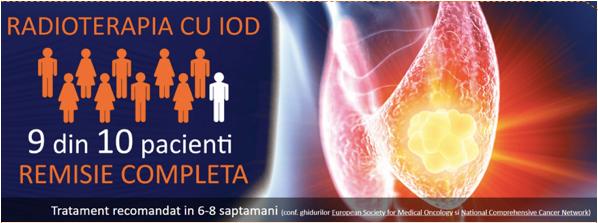Radioterapia cu iod OnocoFort