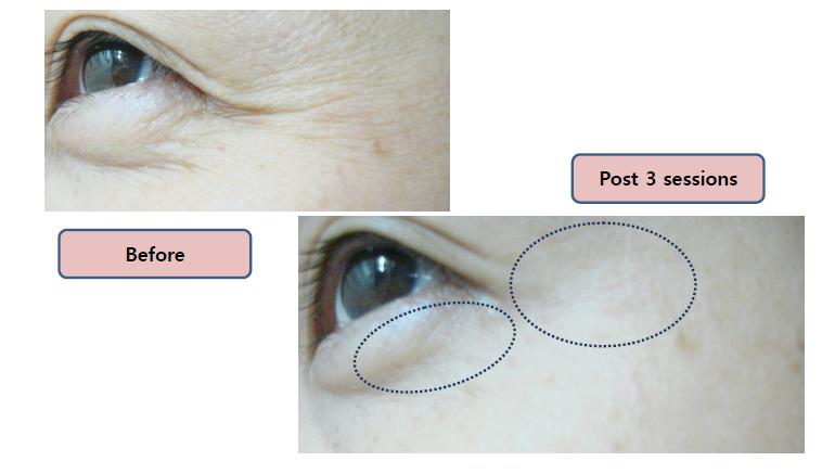 efect anti aging