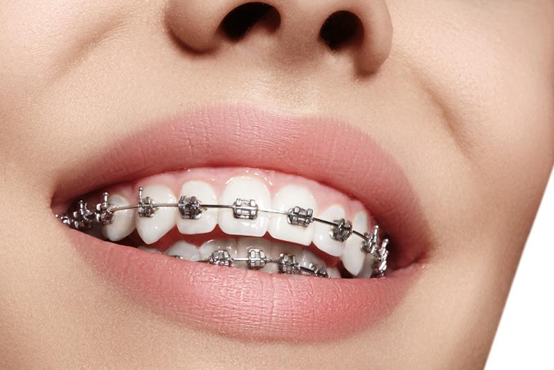 Tratamentul aftelor bucale ca urmare a purtarii aparatului dentar