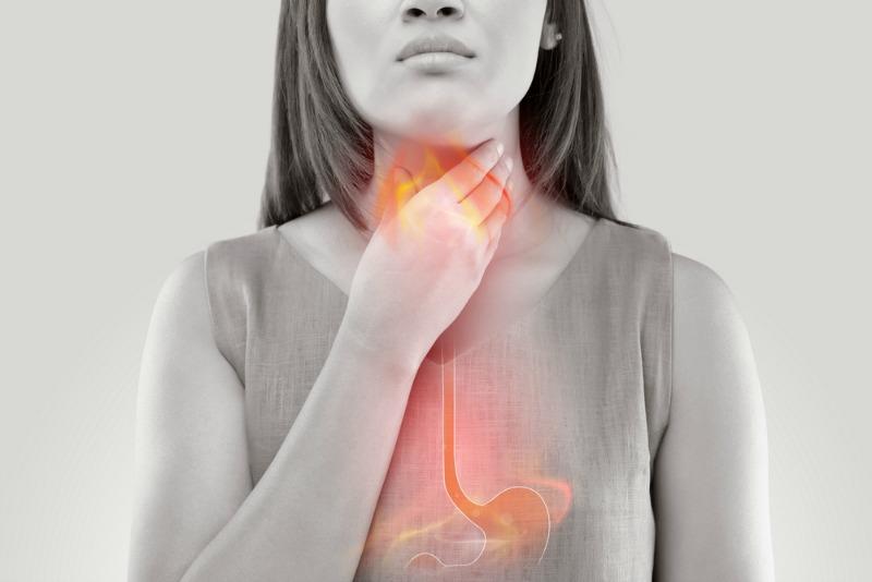 reflux gastroesofagian