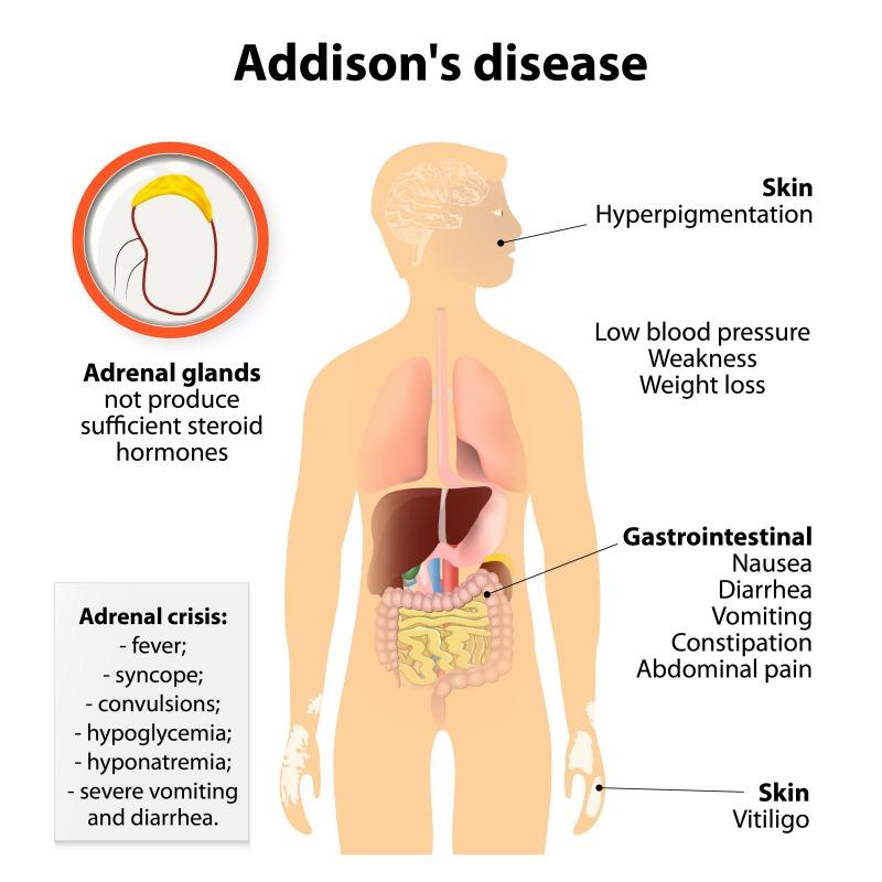 ce cauzează pierderea în greutate în boala addison)