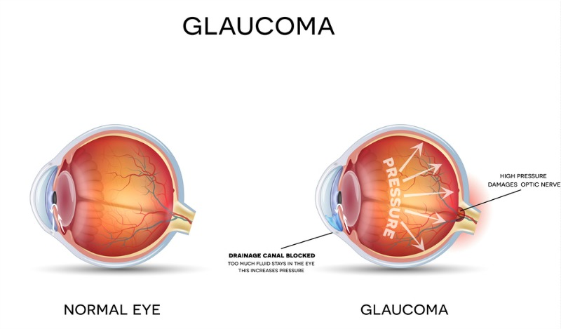 viziunea glaucomului)